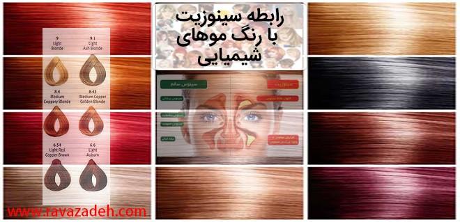 رابطه سینوزیت با رنگ موهای شیمیایی