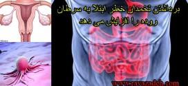 برداشتن تخمدان خطر ابتلا به سرطان روده را افزایش می دهد