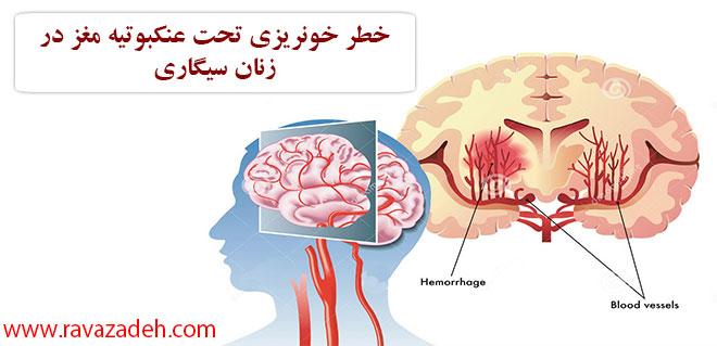 Photo of خطر خونریزی تحت عنکبوتیه مغز در زنان سیگاری