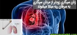 زنان سیگاری زودتر از مردان سیگاری به سرطان ریه مبتلا میشوند