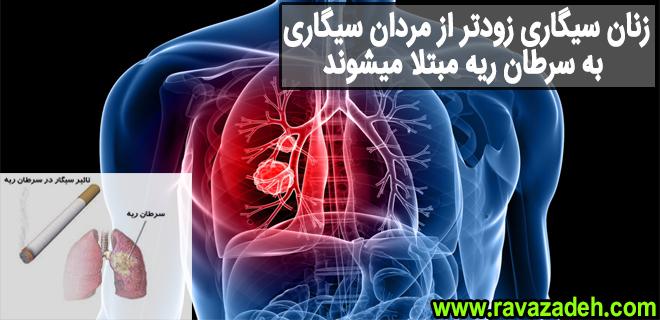 Photo of زنان سیگاری زودتر از مردان سیگاری به سرطان ریه مبتلا میشوند