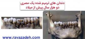 دندان های ترمیم شده یک مصری در دو هزار سال پیش از میلاد