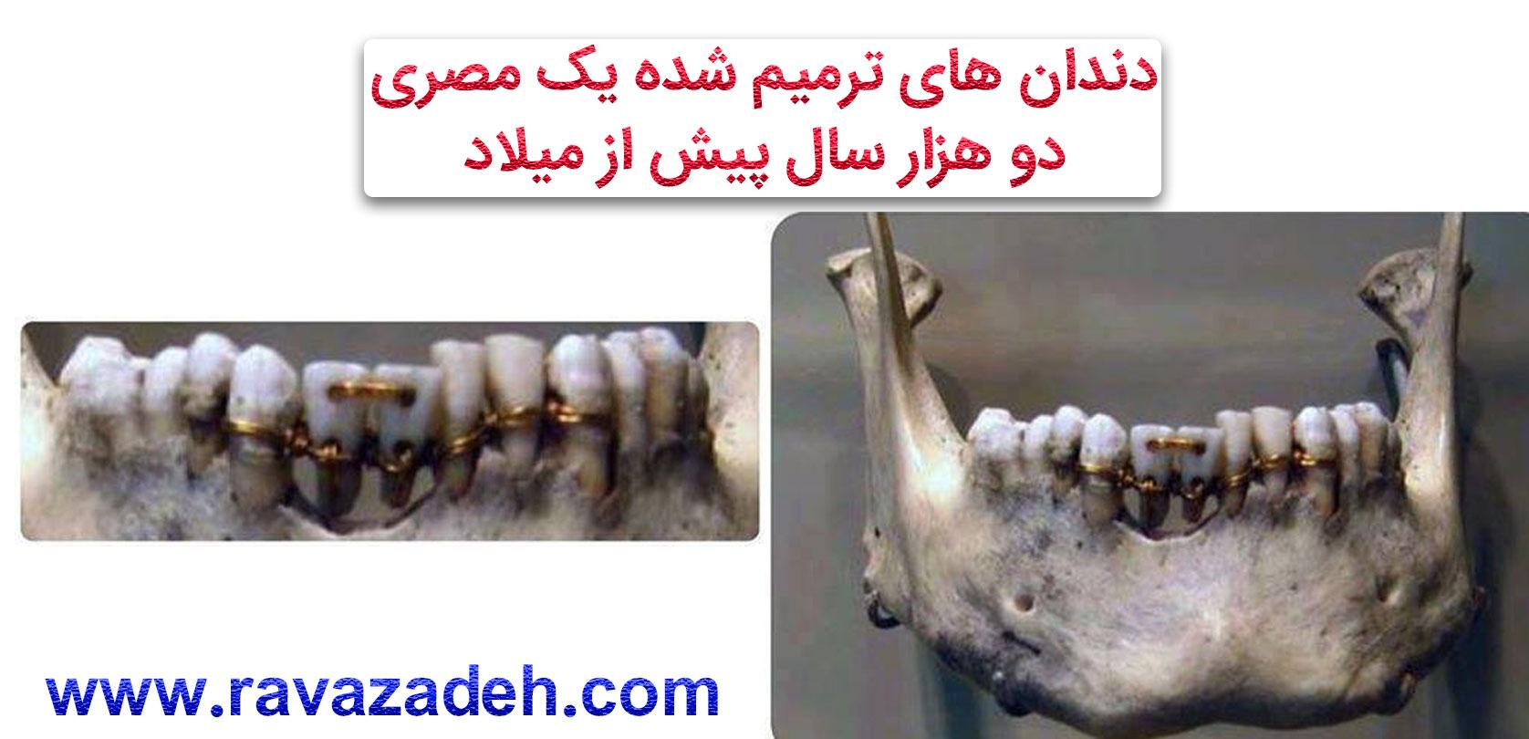 Photo of دندان های ترمیم شده یک مصری در دو هزار سال پیش از میلاد