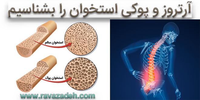 آرتروز و پوکی استخوان را بشناسیم