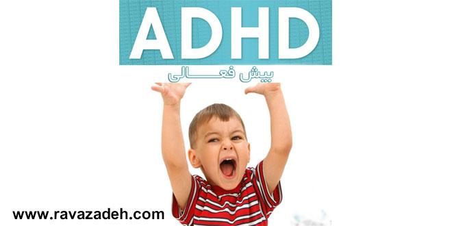 اختلال بیش فعالی در کودکان