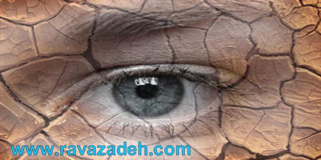 خطر خشکی چشم در کمین کودکان