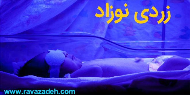 Photo of توصیه بهداشتی: زردی نوزادان