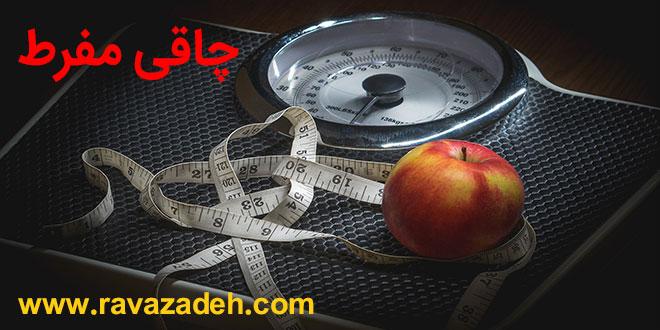 Photo of تدابیر چاقی مفرط