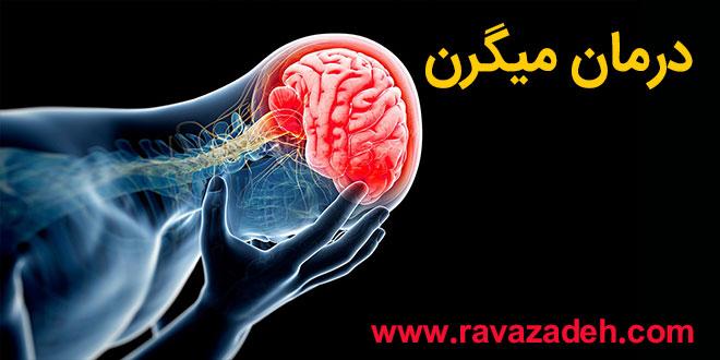 Photo of تدابیر درمان میگرن