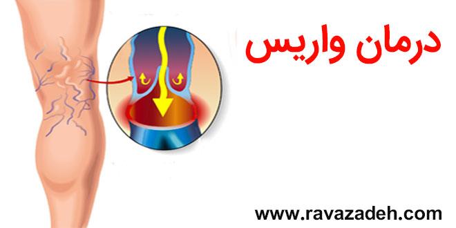 Photo of درمان واریس