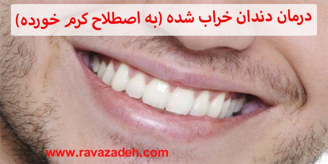 تسکین درد دندان خراب شده (به اصطلاح کرم خورده)