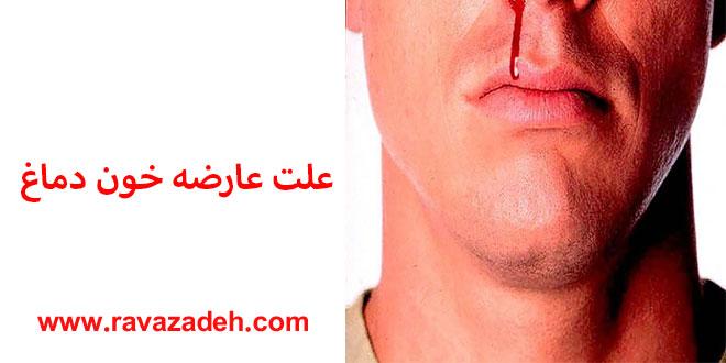 Photo of علت عارضه خون دماغ