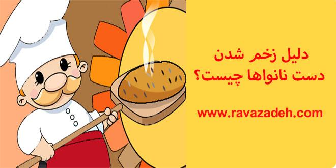 Photo of دلیل زخم شدن دست نانواها چیست؟