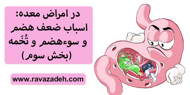 در امراض معده: اسباب ضعف هضم و سوءهضم و تُخَمه (بخش سوم)