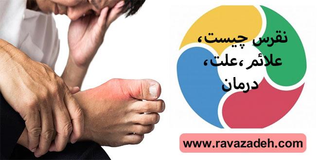 نقرس چیست، علائم، علت، درمان