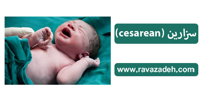 سزارین (cesarean)