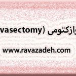 وازکتومی (vasectomy)