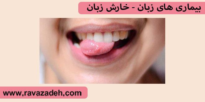 بیماری های زبان – خارش زبان