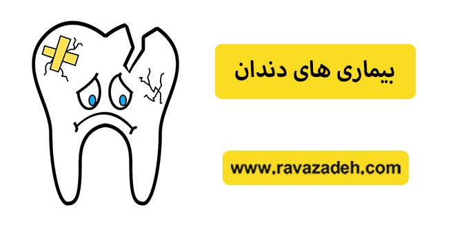 Photo of بیماری های دندان