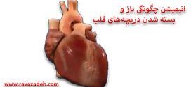 انیمیشن چگونگی باز و بسته شدن دریچههای قلب