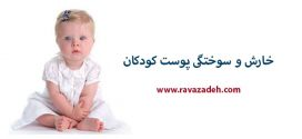 خارش و سوختگی پوست کودکان