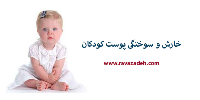 Photo of خارش و سوختگی پوست کودکان