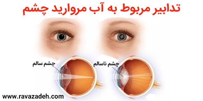 تدابیر مربوط به آب مروارید چشم