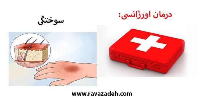 درمان اورژانسی: سوختگی