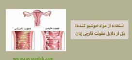 عفونت قارچی زنان