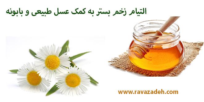 التیام زخم بستر به کمک عسل طبیعی و بابونه
