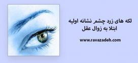 لکه های زرد چشم نشانه اولیه ابتلا به زوال عقل