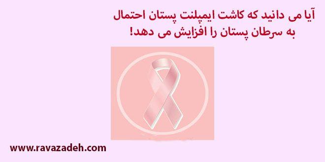 آیا می دانید که کاشت ایمپلنت پستان احتمال ابتلا به سرطان پستان را افزایش می دهد!
