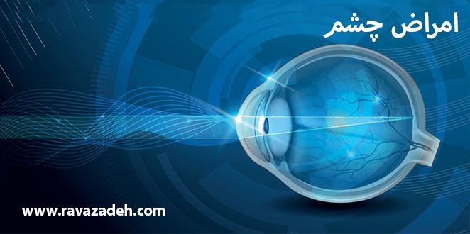 Photo of امراض چشم