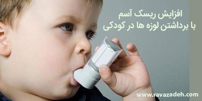 افزایش ریسک آسم با برداشتن لوزه ها در کودکی