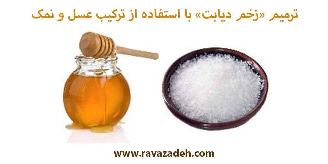 ترمیم «زخم دیابت» با استفاده از ترکیب عسل و نمک