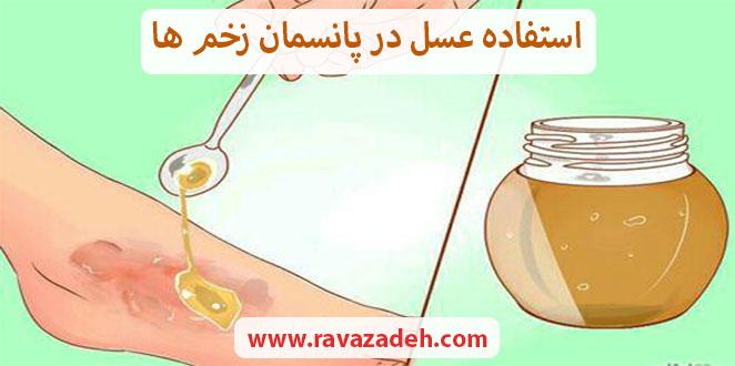Photo of استفاده عسل در پانسمان زخم ها