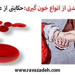 حکایت هایی خواندنی از انواع خون گیری:حکایتی از عروضی سمرقندی