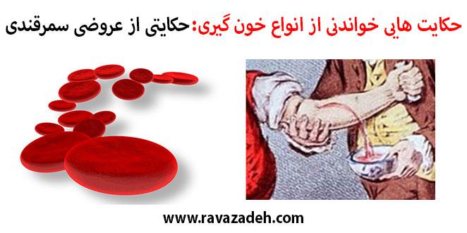 Photo of حکایت هایی خواندنی از انواع خون گیری: حکایتی از عروضی سمرقندی