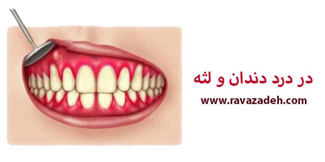 Photo of در درد دندان و لثه