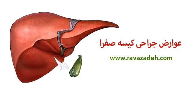 """Photo of عوارض جراحی """"کیسه صفرا"""""""