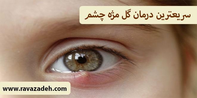 Photo of سریعترین درمان گل مژه چشم
