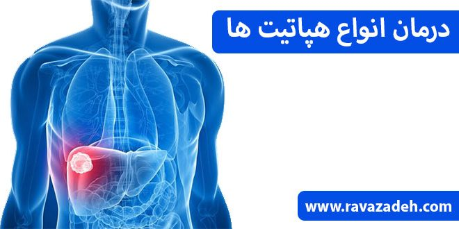 درمان انواع هپاتیت