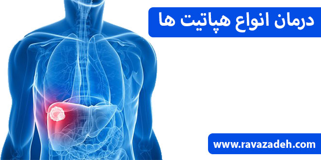 Photo of درمان انواع هپاتیت