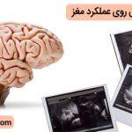 تاثیر مثبت بارداری روی عملکرد مغز