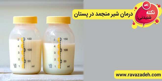 نکته های شنیدنی: درمان شیر منجمد در پستان