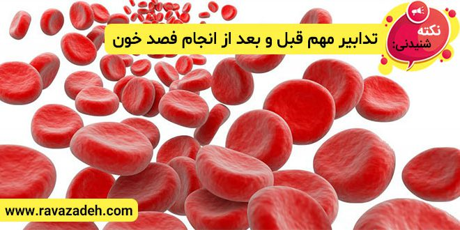 نکته های شنیدنی: تدابیر مهم قبل و بعد از انجام فصد خون