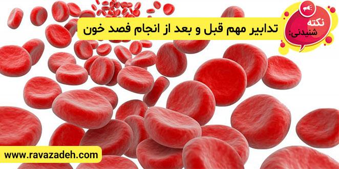 Photo of نکته های شنیدنی: تدابیر مهم قبل و بعد از انجام فصد خون