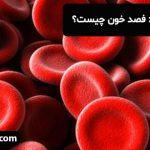 نکته های شنیدنی: فصد خون چیست؟