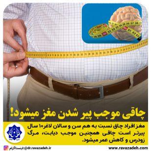 تصویر از چاقی موجب پير شدن مغز میشود!